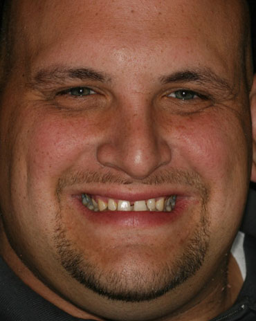 A Man with Two Separate Front Teeth