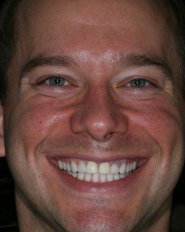 A Man That Needs Dental Assistance