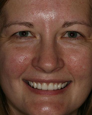 A Close-Up Shot of a Woman