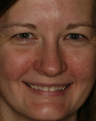 A Woman That Needs Dental Guidance