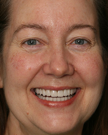 A Woman with a Big Smile