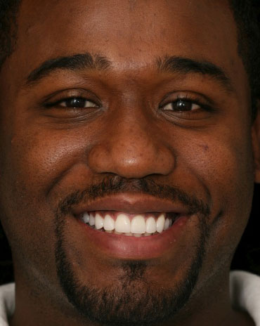 A Guy Smiling with a Mouthful of White Teeth