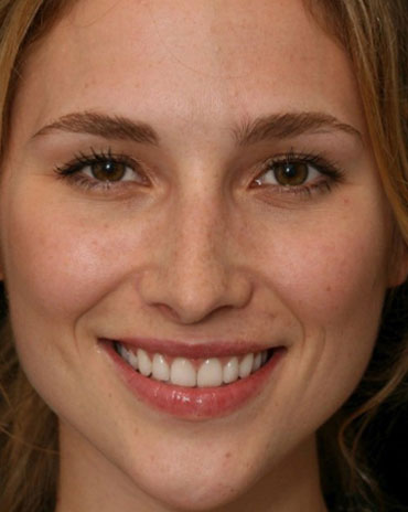 An Exquisite Woman with Fascinating Teeth