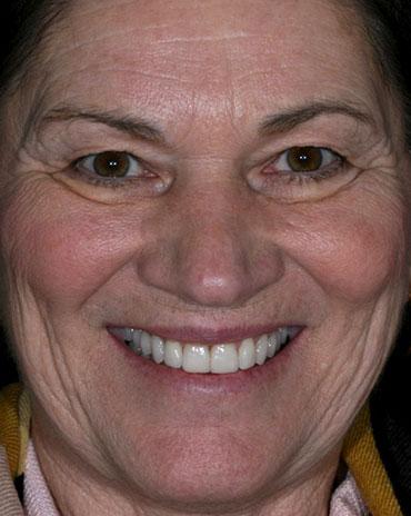 A Woman in Need of Dental Repair
