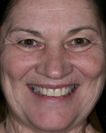A Lady Smiling with Dark Teeth