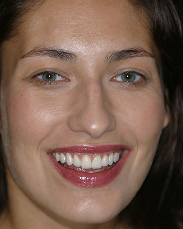 A Stunning Woman Smiling