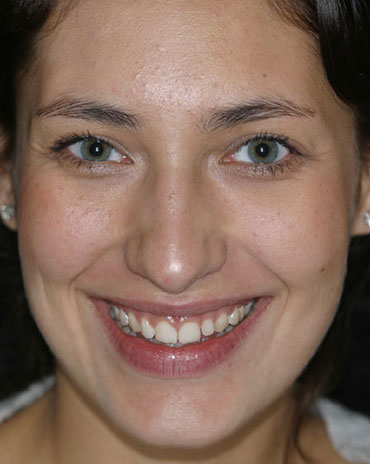A Girl with Stained Teeth