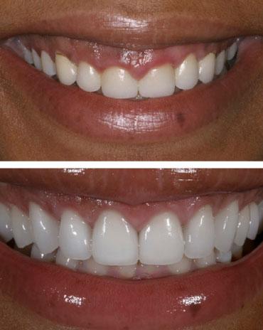 Teeth Configuration That Just Had Dental Repair