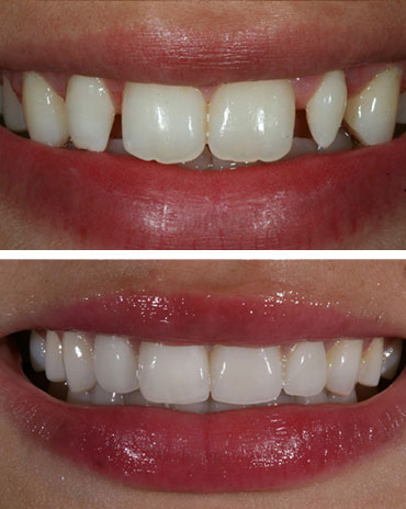 Separated Teeth over a Set of Pearly White Teeth