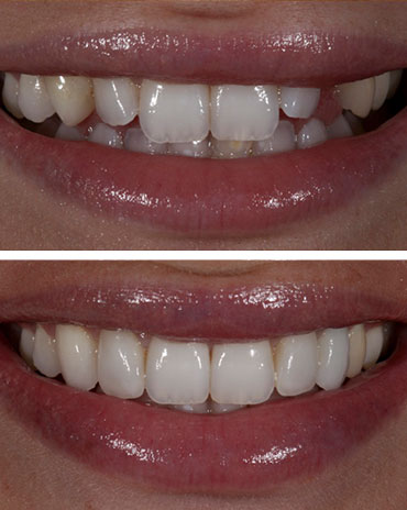 Misaligned Teeth over a Set of Teeth with Even Lengths