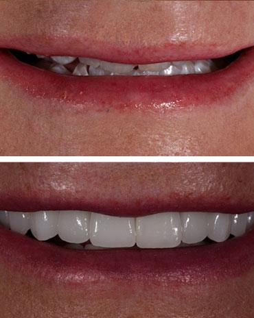 Poor Dental Health Versus Teeth with Proper Care