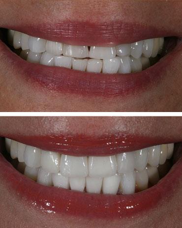 Fixed Teeth for Better Aesthetics