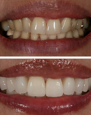 Teeth with Prophylaxis and Ones That Are Poorly Taken Care Of