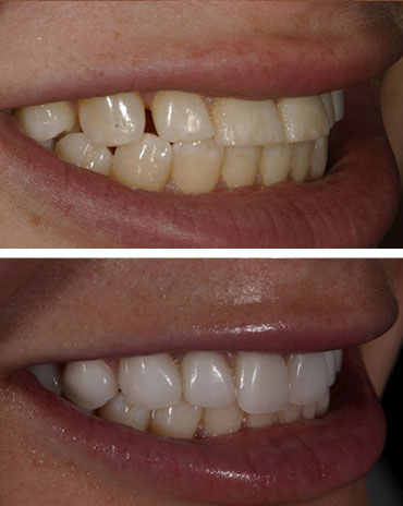 Teeth That Got Their Alignment and Color Fixed