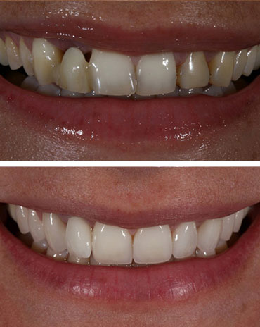 Decaying Teeth and Gums on Top of a Healthy Set of Teeth