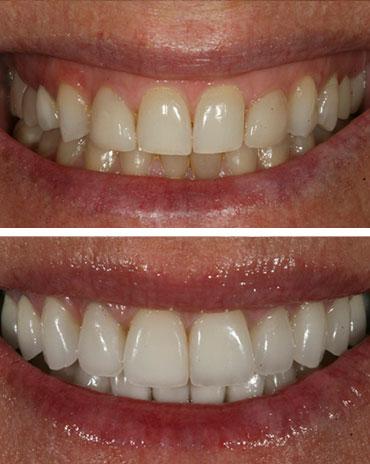 Bad Teeth and Healthy Teeth