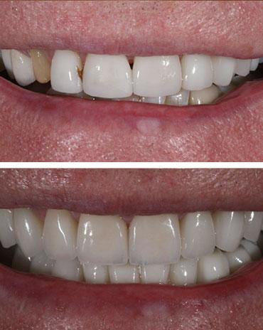 Set of Teeth After Dental Repair